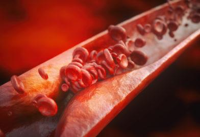 Атеросклероз: факты, гипотезы, спекуляции.