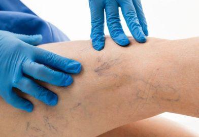 Лечение варикозной болезни в условиях поликлиники