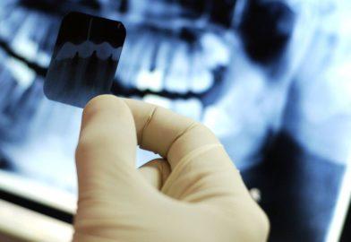 Пломбирование зубов. Нужен ли рентгеновский снимок зуба?