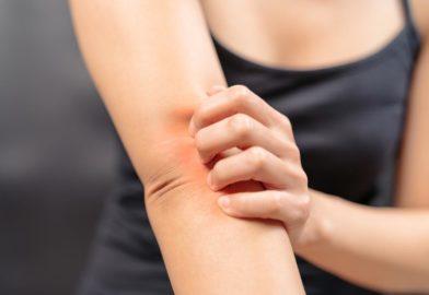 Псориаз. Высокоэффективное лазерное лечение