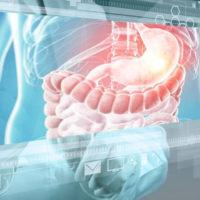Лечение геморроя. Метод внутриузлового лазерного склерозирования при внутреннем геморрое в АМК во Владимире