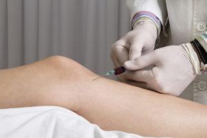 Плазмотерапия суставов. Лечение суставов в АМК во Владимире