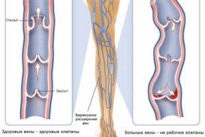 Лечение варикозного расширения вен н/к методом EVLT (ЭВЛК) в АМК во Владимире